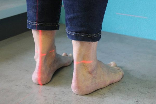 Scannen van voeten bij Broeders Orthopedie